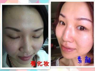 激光嫩肤祛斑 光子嫩肤和激光祛斑心得分享